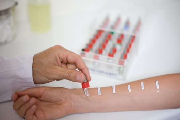 Где сдать пробы на аллергию